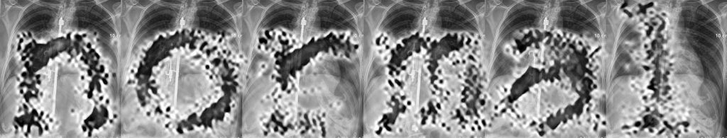 monochrome print of a series of chest x-rays