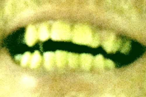 Picture of some teeth